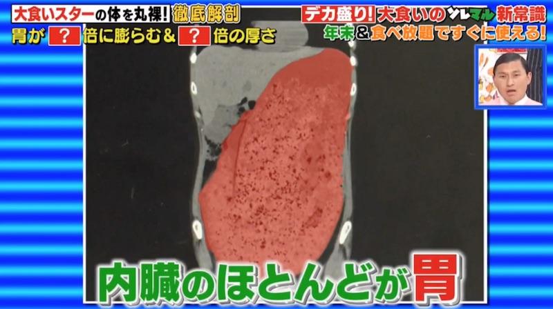 【衝撃映像】もえあずの大食い後のお腹のCTスキャン画像。一般人の10倍